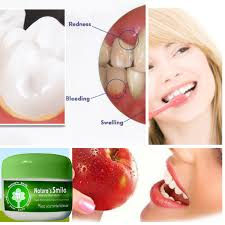 Can Receding Gums Go Back To Normal without Surgery