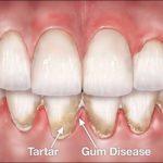 Gum-Disease-and-Gum-Tissue-652×400-1